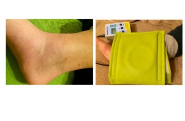Using PEMF for an ankle fracture and ligament damage